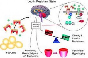 letptin resistance